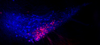 CAV-cre is a viral method that allows us to identify dopamine neurons by projection target. Here, CAV-cre was injected into the dorsomedial striatum (DMS) of a tdTomato reporter mouse. Therefore, DMS-projecting neurons are labeled in red. Dopamine neurons (identified by immunostaining for TH) are shown in blue.