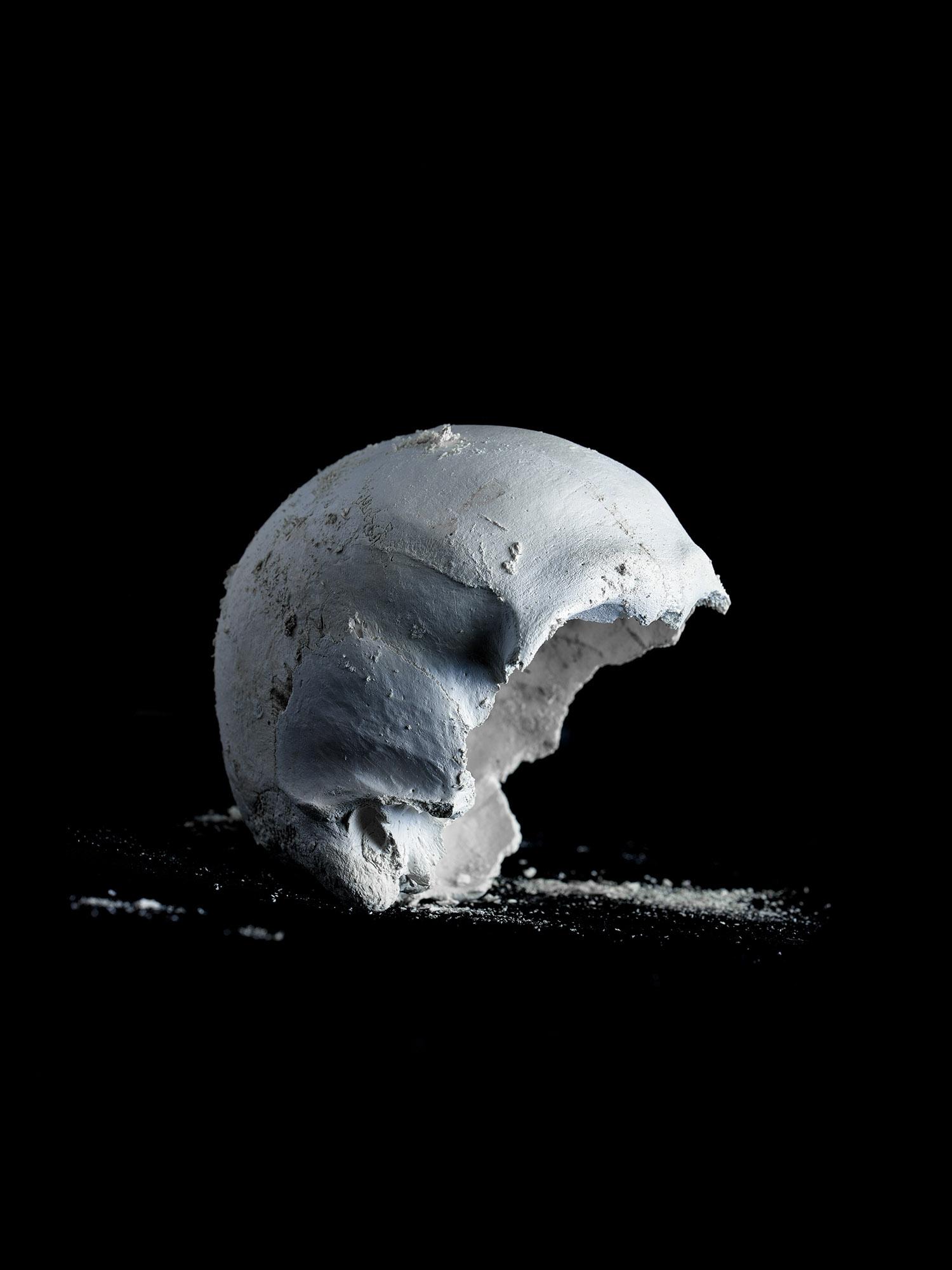 Human Skull Processed by Alkaline Hydrolysis, UCLA, Los Angeles, California, 2017