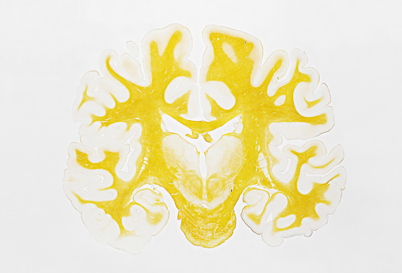 Human Brain Slice, San Diego, California, 2009