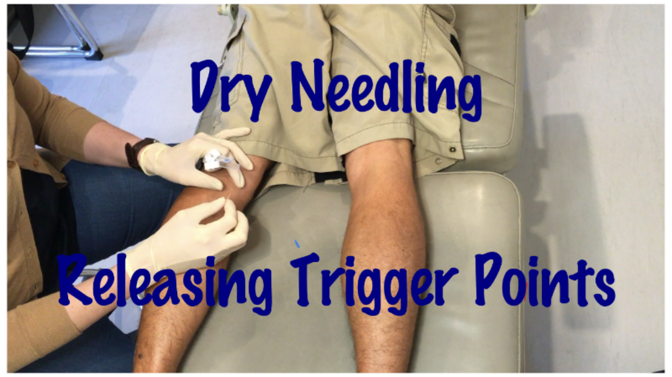 Curious about dry needling? Want to know what it's like before you have it done? Check out our demonstration video