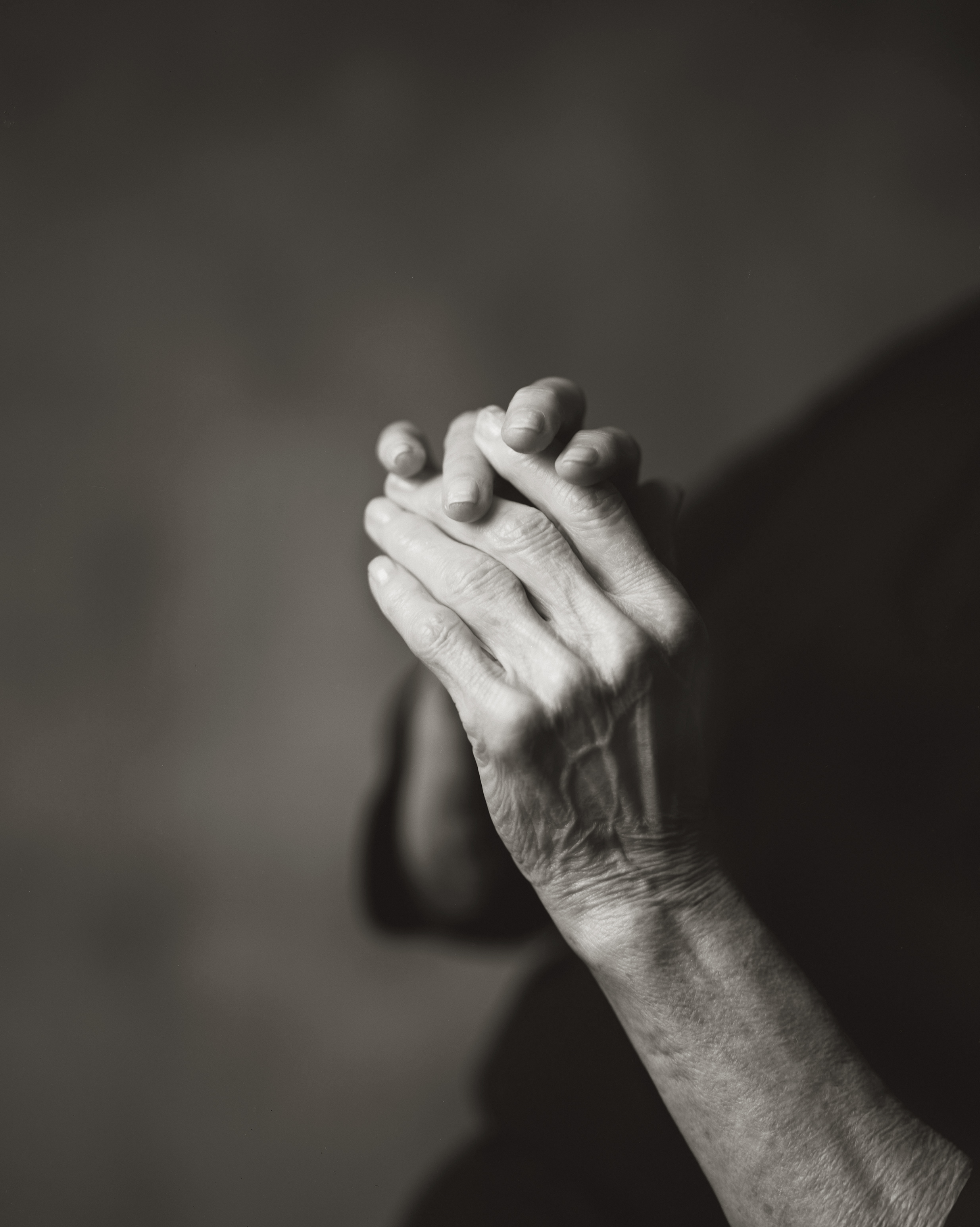 MY MOTHER'S HANDS, WITH ARTHRITIS