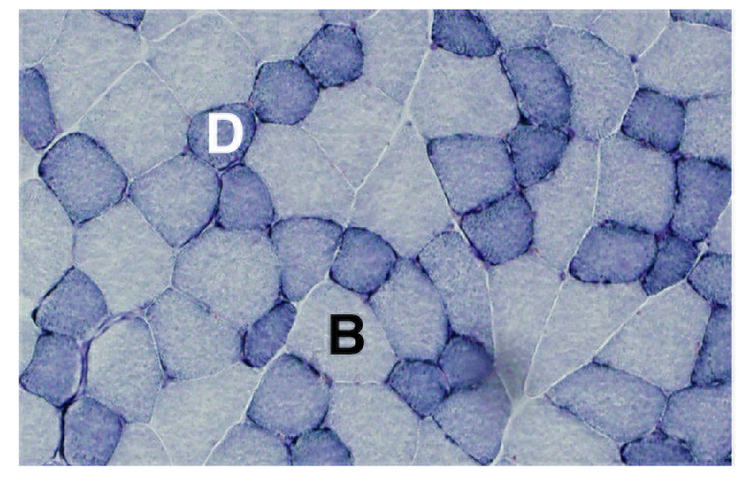 Images are serial top to bottom. From: Muscle Fiber Type-Predominant Promoter Activity in Lentiviral-Mediated Transgenic Mouse ( https://doi.org/10.1371/journal.pone.0016908 ).