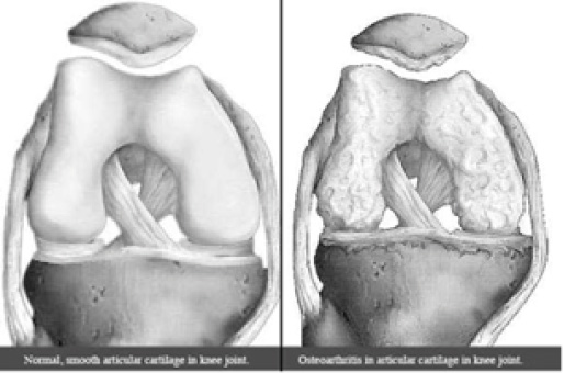 Normal and Osteoarthritic Joints (Source: Healthpages)