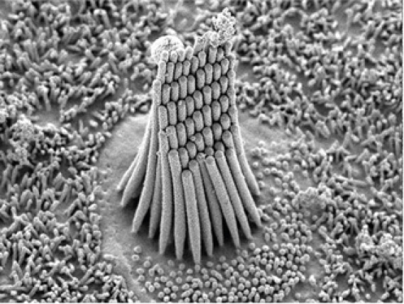 Scanning Electron Micrograph of Hair Cell