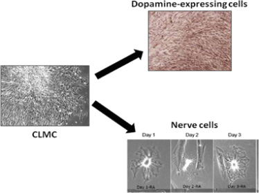 CLMC Differentiated in Dopamine-expressing cells and nerve cells