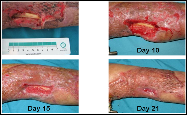 CLSC treatment and healing of a complex open forearm wound with exposed bone