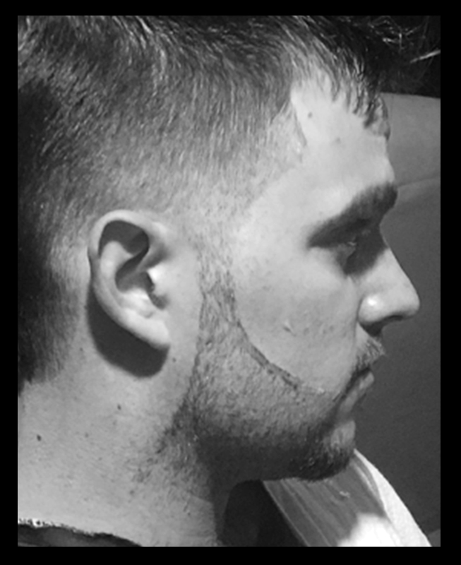 Burns Barber Shop Beard Trim