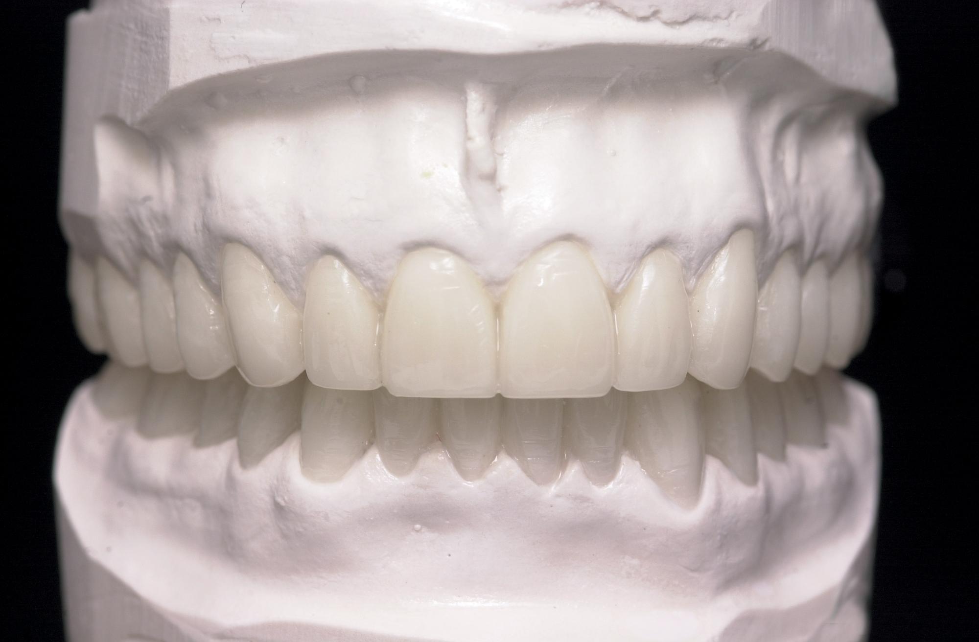 diagnostic wax-ups