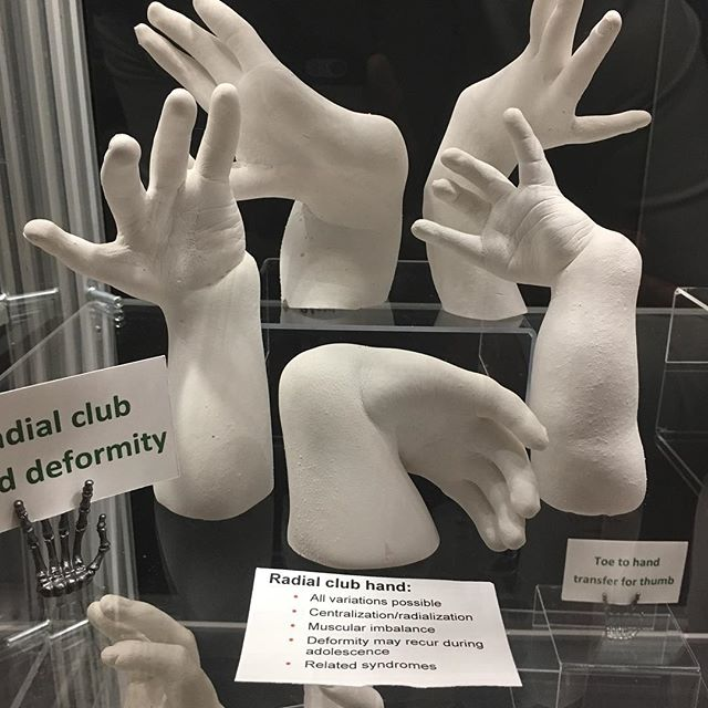 Part of Dr. Joseph Upton's amazing collection of congenital hand plaster casts #ASSHmtg #ASSH