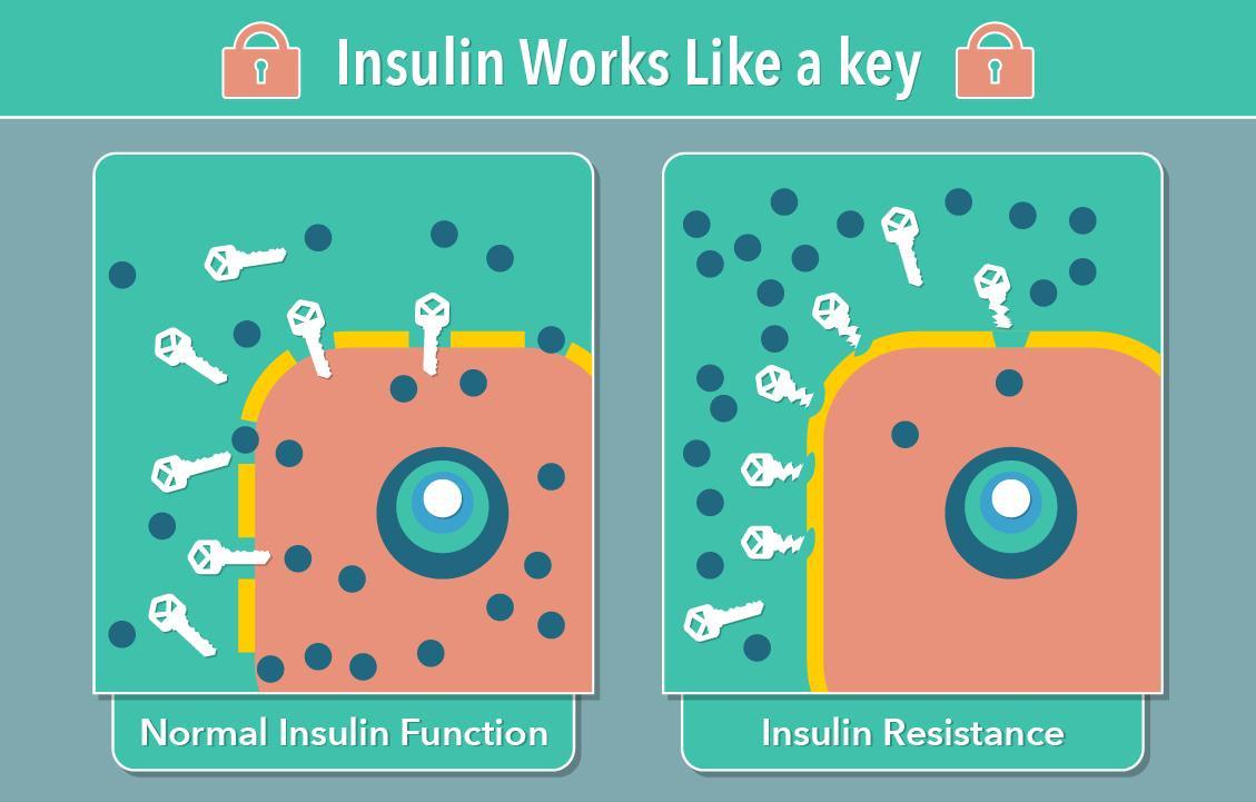 This Is Diabetes - Insulin Resistance.jpg