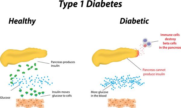 Diabetes Awareness Month - type-1-diabetes .jpg