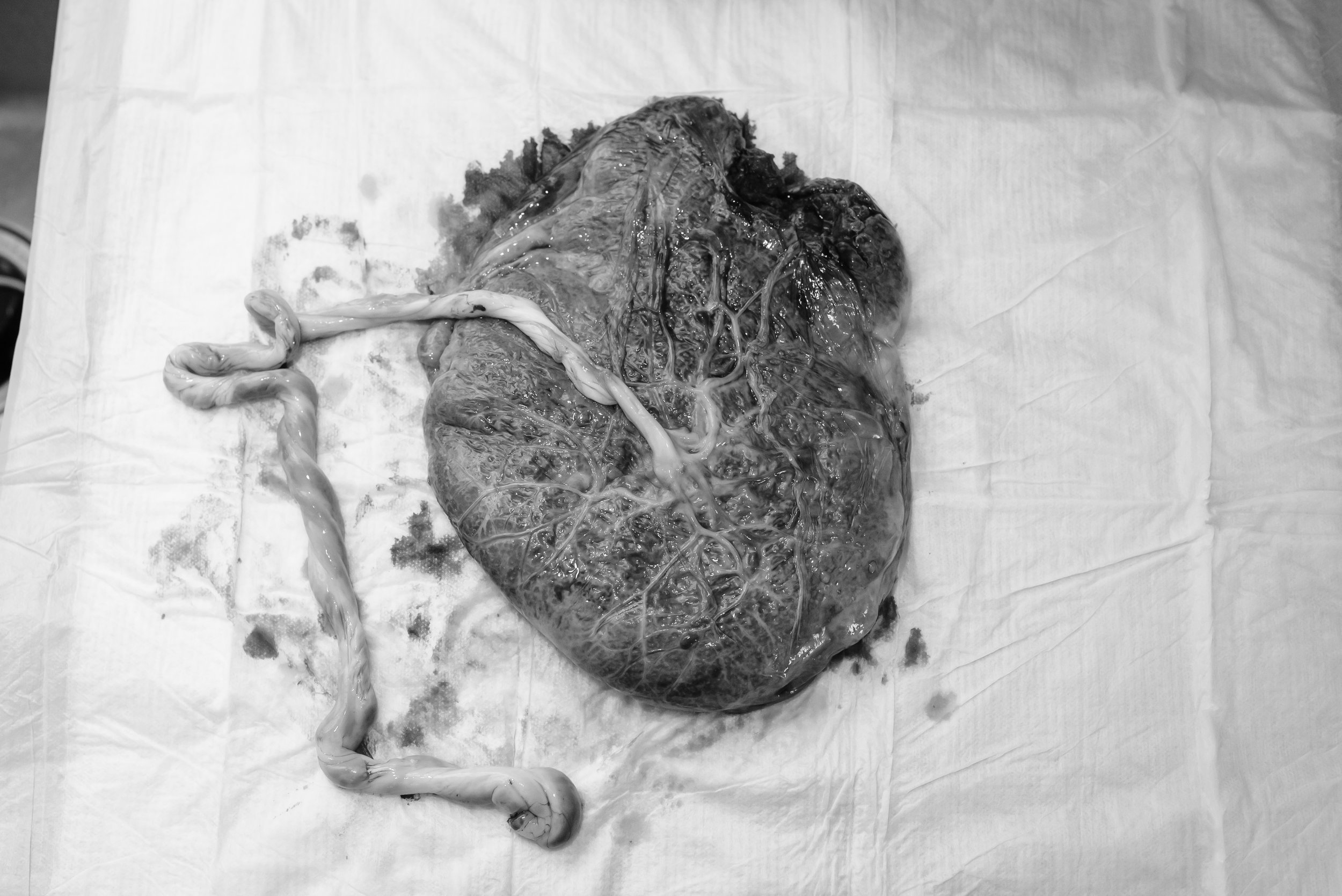 Marissas Birth Session-199.jpg