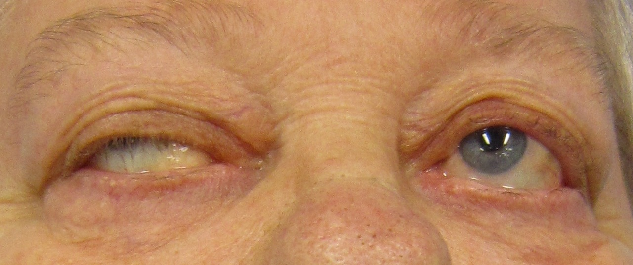 Eye deviation and a drooping eyelid in a person with myasthenia gravis trying to open their eyes