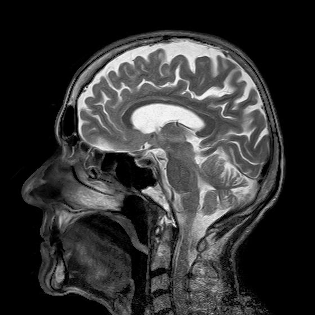brain gadolinium