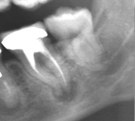 Pre re root canal treatment lower molar.jpg