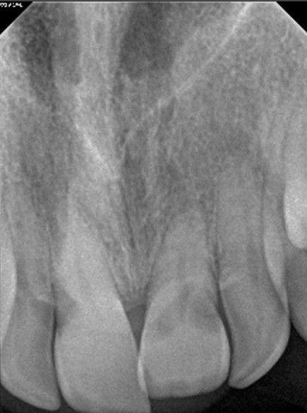 Upper incisor.jpg