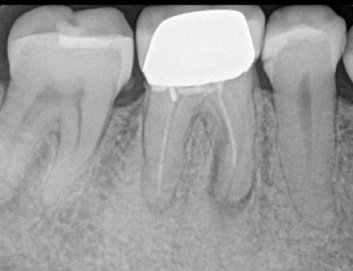 Lower molar re root canal treatment through crown.jpg