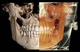 CBCT-for-root-canal.jpg