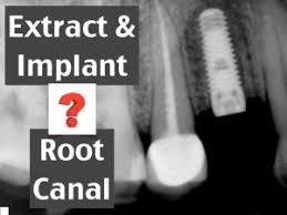 root -canal-vs-implant.jpg