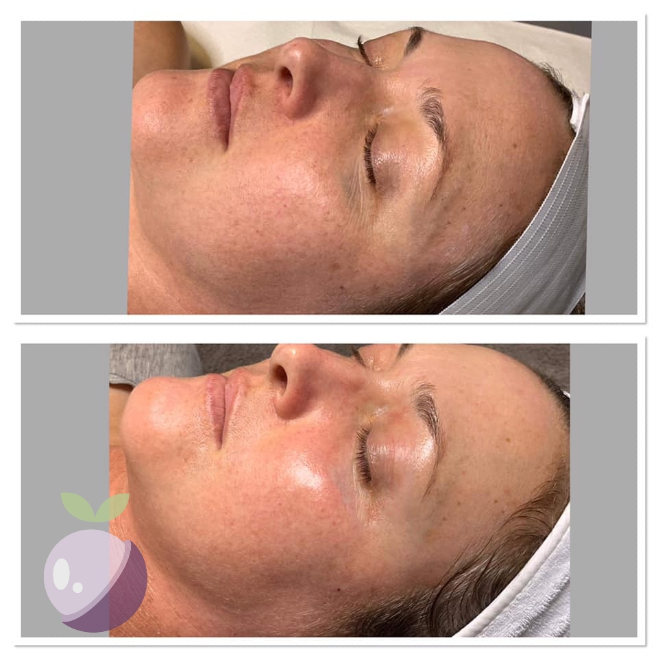 *Actual Apeeling Skin client. Pictures taken one week apart, not retouched.
