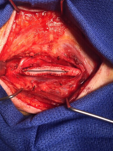 Carotid artery patched, open wider than ever