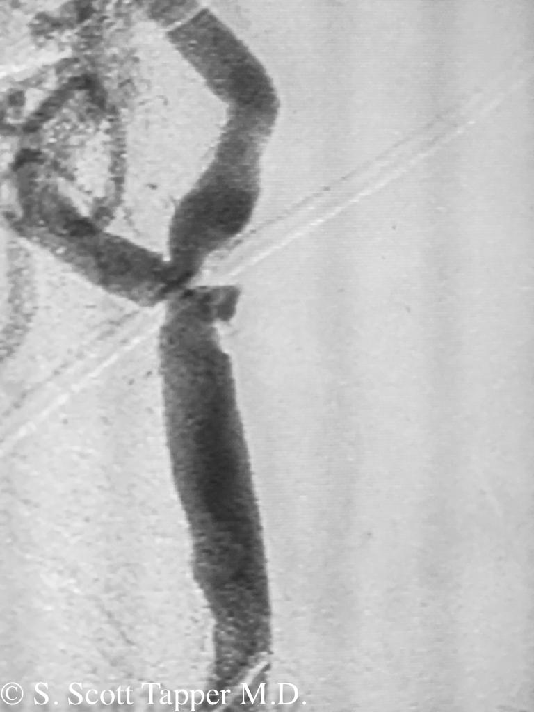 Ulcerated plaque in carotid causing mini-strokes