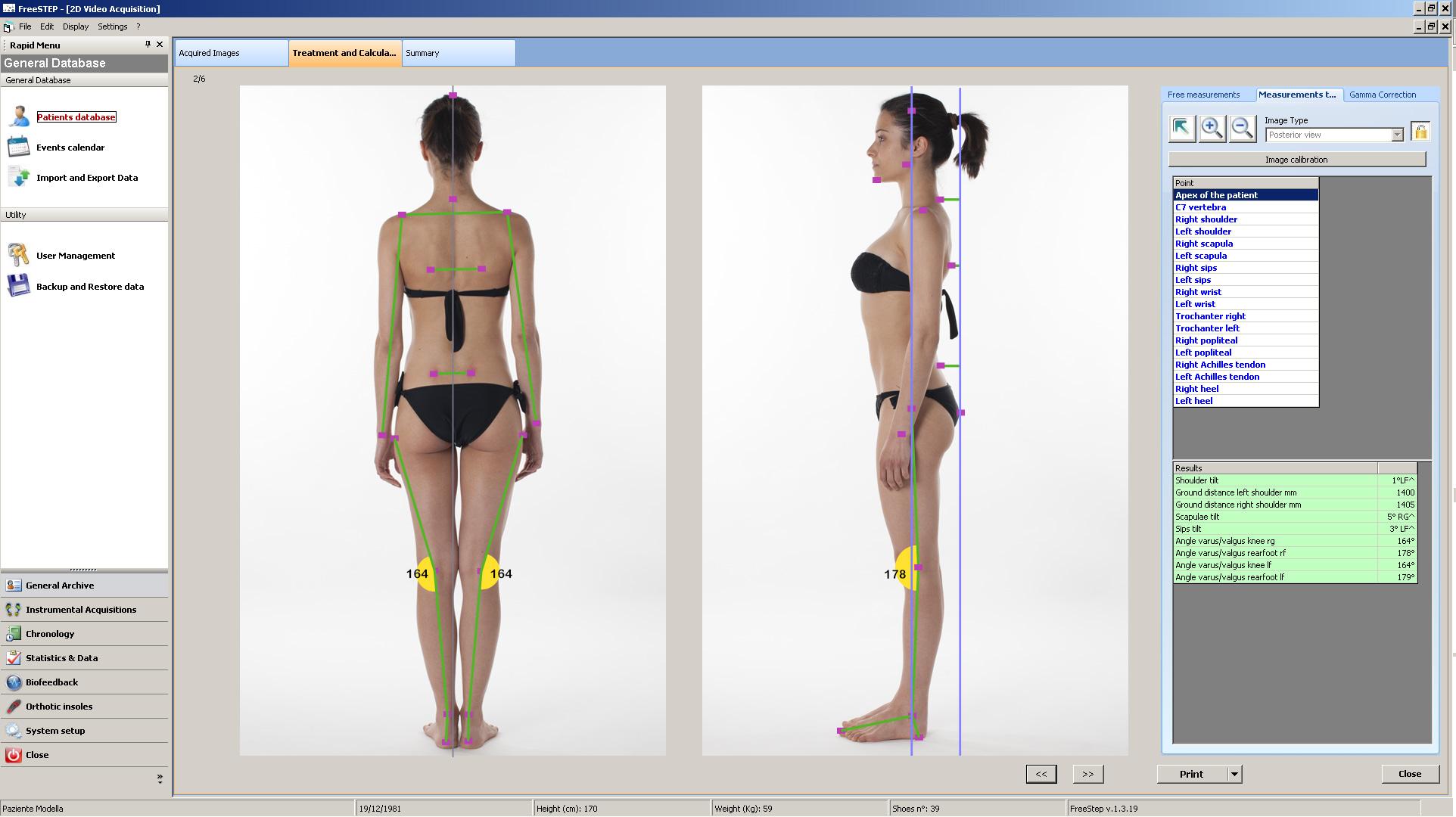 Análisis de postura