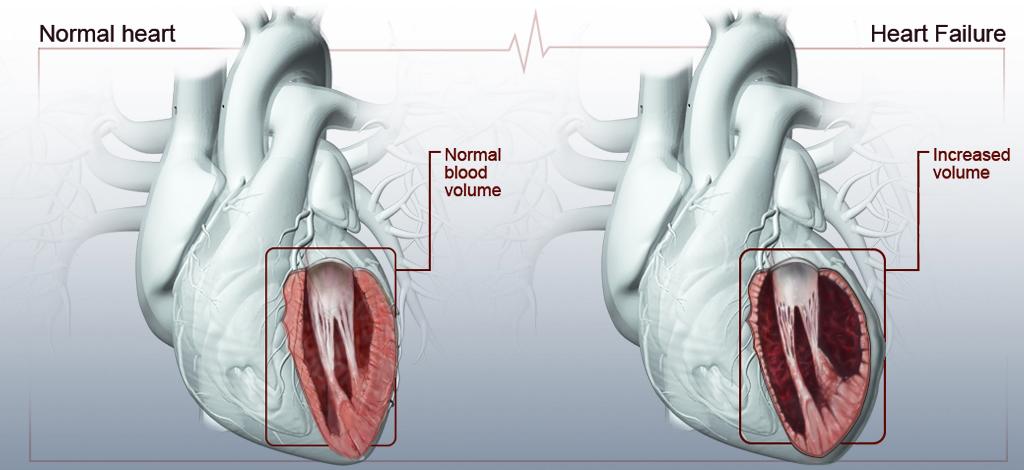 HeartIllustration_9.jpg
