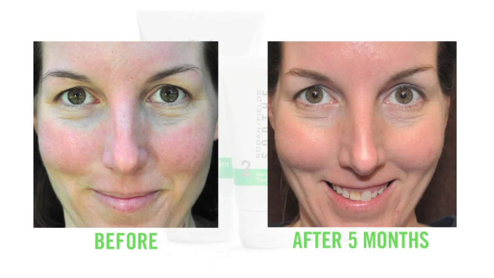 Soothe Line - Click here to try our redness and blotch correction line!