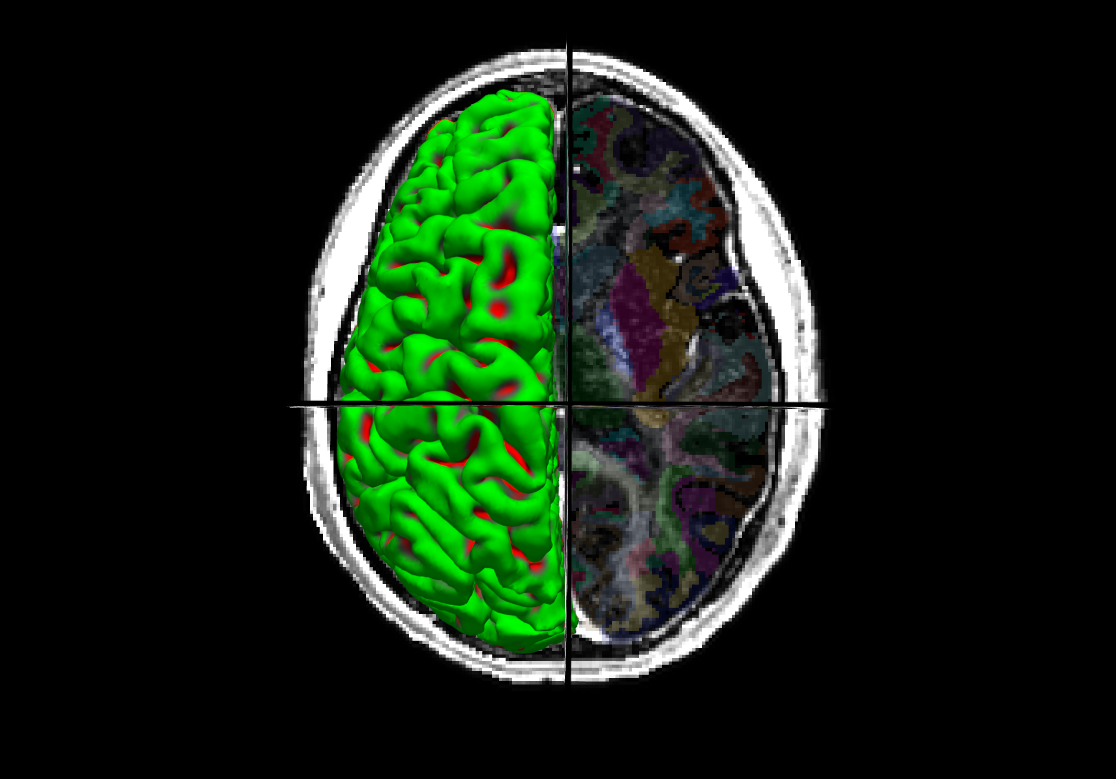 Myelination of the parcellated human brain