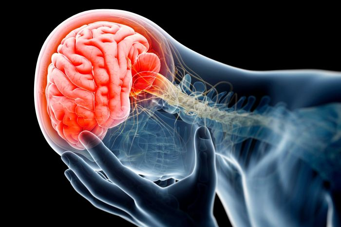 Your brain plays a crucial role in how your body experiences pain.  (Science Photo Library/Getty Images)