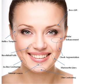 Areas of face for Dermal fillers