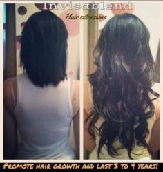 hair-loss-treatments-1452985206-2131784780.jpg