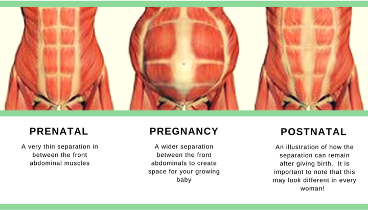 """a separation happens when the tissue in between the """"six-pack"""" muscles,  known as the linea alba stretches during pregnancy to create space for the  growing"""