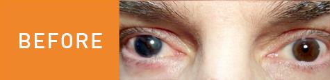 Tim's eye before surgery.