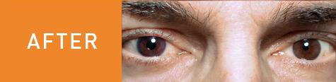 Tim's eye after surgery.