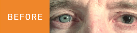 Dan's eye before surgery.