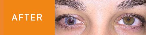 Gabby's eye after surgery.