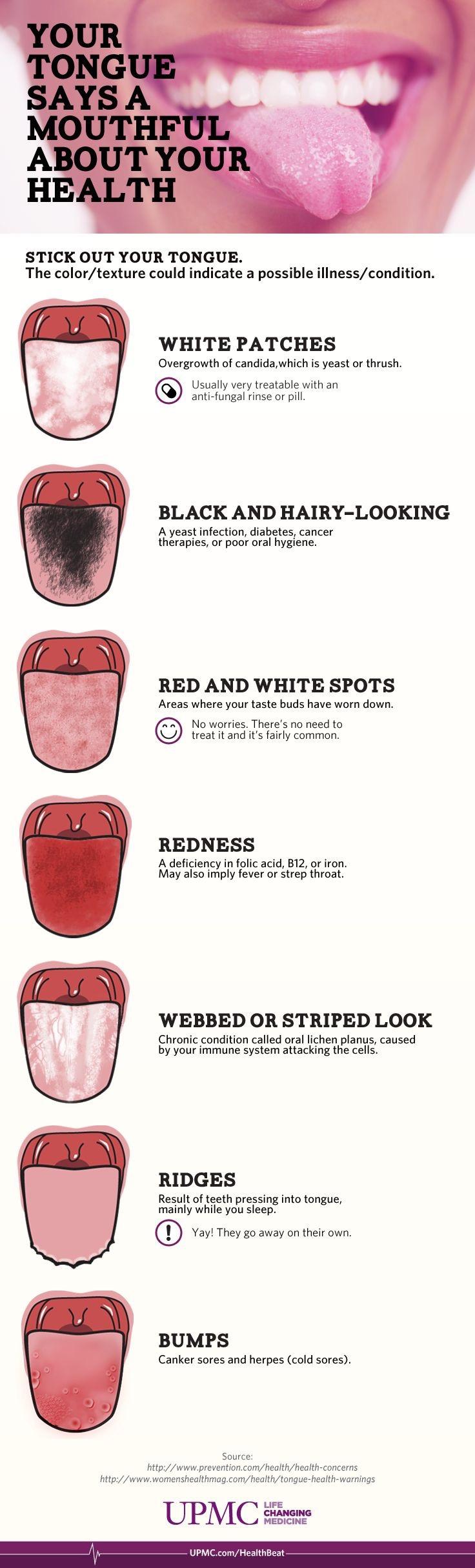 TONGUES-Anatomy.jpg