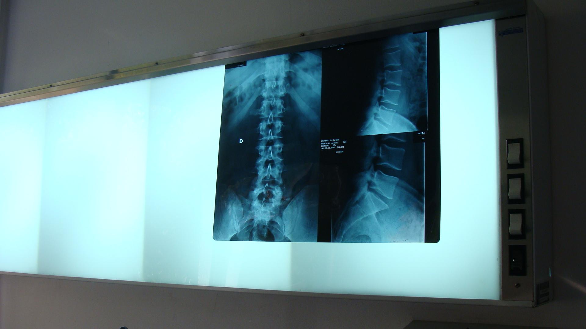 kinesiologia - radiografia - clinica de ejercicio kw - la reina.JPG