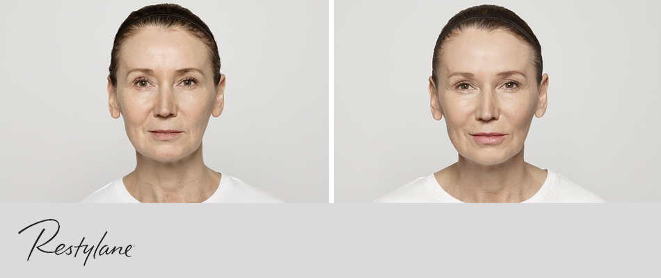 50-year-old patient's mid face, nasolabial folds, lips and perioral lines treated with Restylane® Lyft, Restylane-‐L® and Restylane® Silk.  Actual, unpaid patient. Individual results may vary. Images have not been retouched.