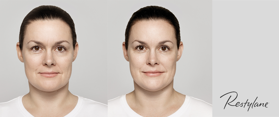 38-year-old patient's mid face, nasolabial folds, marionette lines, lips and perioral lines treated with Restylane® Lyft, Restylane-‐L® and Restylane® Silk.  Actual, unpaid patient. Individual results may vary. Images have not been retouched.