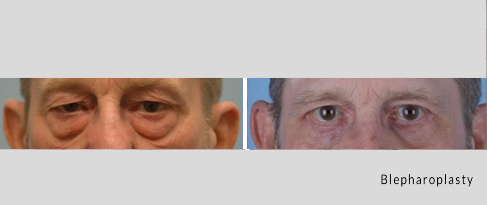 blepharoplasty01.png