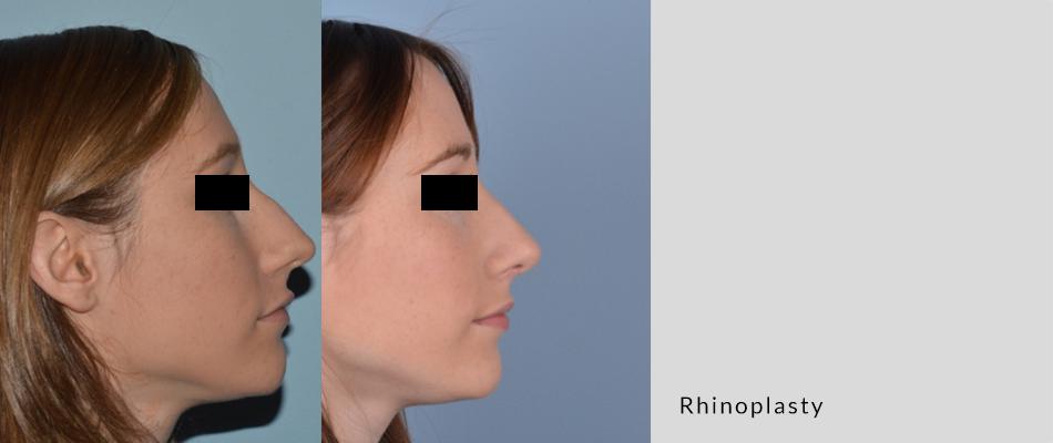 rhinoplasty03-3.png
