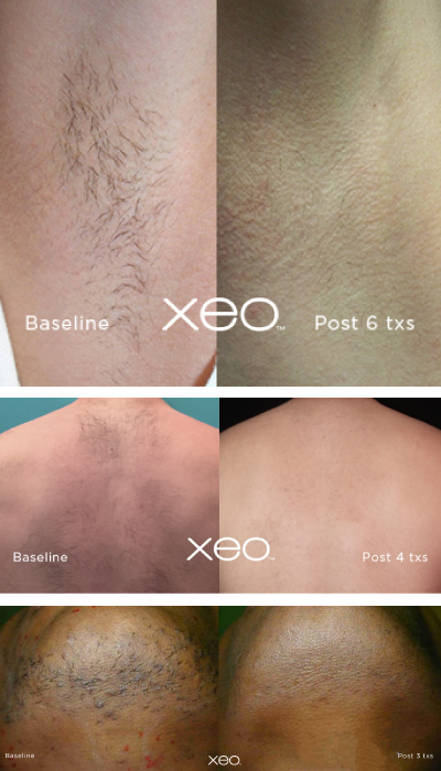 laser-hair-removal-northwest-indiana