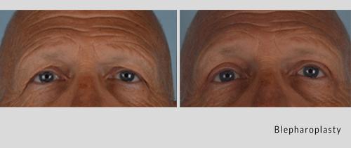 blepharoplasty 7-18-1.jpg