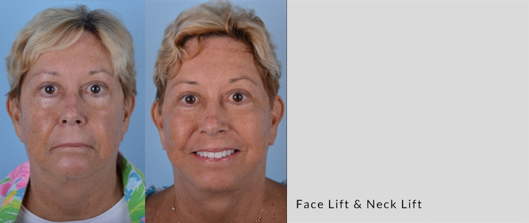 Chad Glazer_Face lift_Neck lift_Sept18_front.jpg