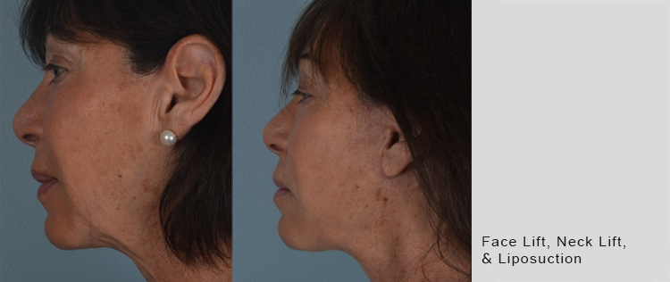 Face-Neck-Lipo_3-19-2.jpg