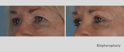blepharoplasty 4-19-1.jpg