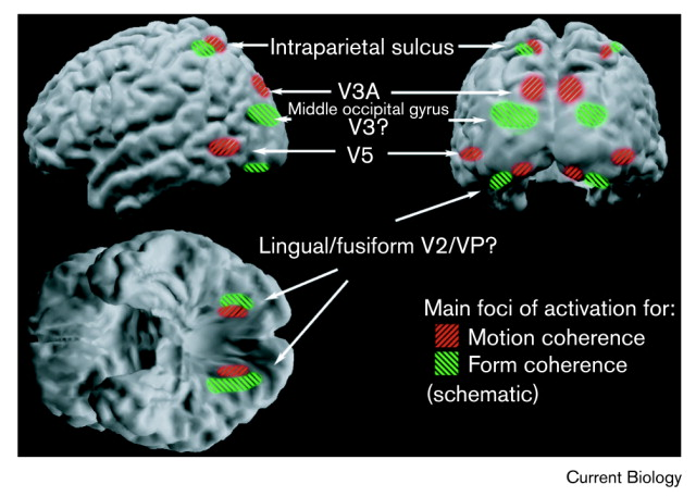 Schematic illustration of regions activated by form coherence (shown in green) and by motion coherence (shown in red). Foci that are distinct on individual subjects may overlap in projection to the cerebral surface even though they are non-overlapping voxels, and so are not well depicted in such rendered views.